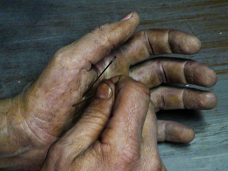 bereavement hand needles